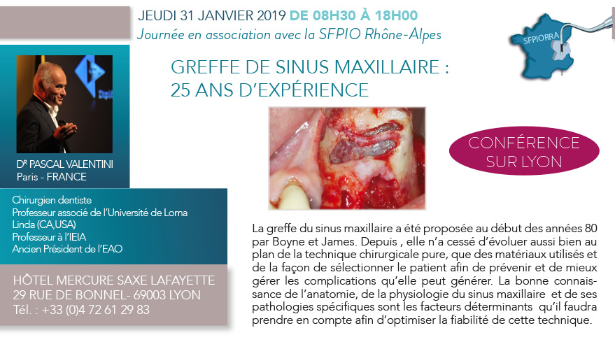 31 012 019 Greffe de sinus maxillaire : 25 ans d'expérience